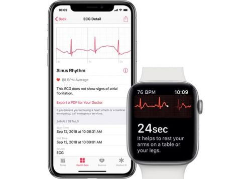 Apple Watch ECG app coming to Canada soon