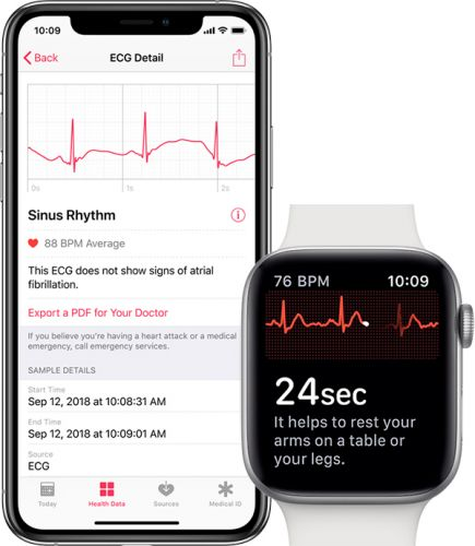 Apple Releasing watchOS 5.3 Today With Walkie-Talkie Bug Fix, ECG Support for Canada and Singapore