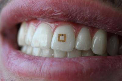 Sticking to your diet? This tooth-mounted food sensor could transmit the truth