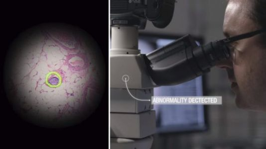Google AR microscope uses machine learning to quickly spot cancer cells