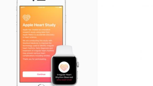Apple and Stanford University study uses new Apple Watch app to detect abnormal heart rhythms