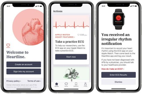 New Apple Watch Study Wants To See If It Can Be Used To Reduce Stroke Risk
