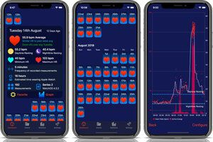 Apple Watch Heart Analyzer gets a complete redesign, adds new features
