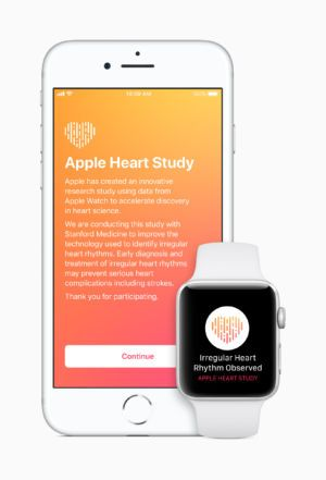 Apple Watch accurately spotted heart condition 34% of the time in study